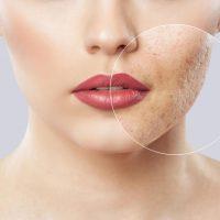 2 méthodes efficace contre les cicatrices de l'acné