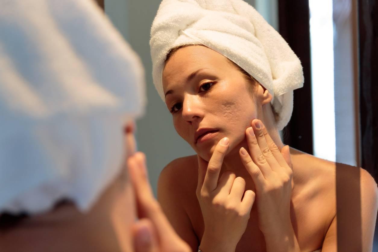 soin serum visage imperfections